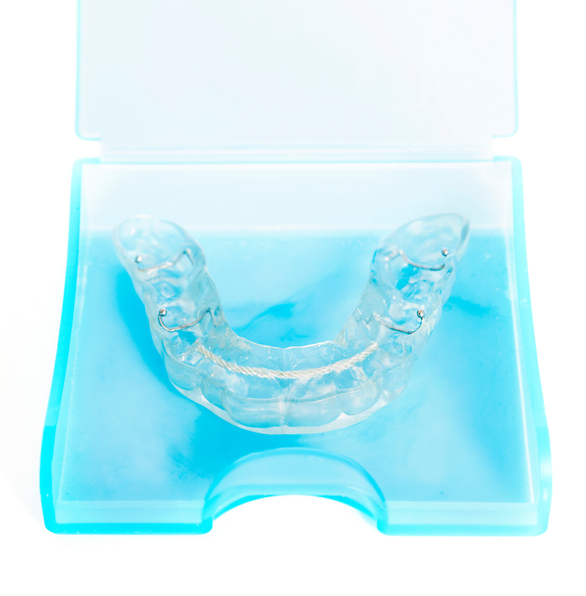 All You Need to Know About Oral Appliance Therapy